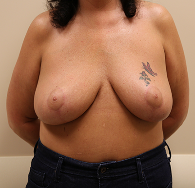 Breast Reduction Before & After Patient #617