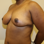 Breast Reduction Before & After Patient #638