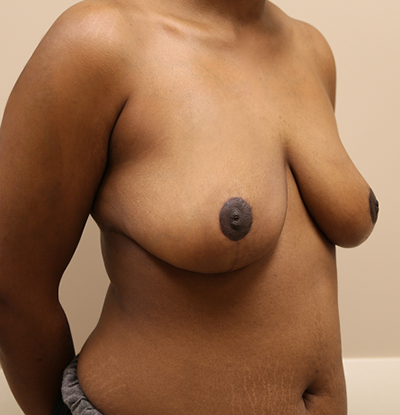 Breast Reduction Before & After Patient #649