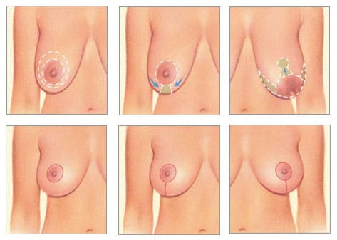 image-of-breast-lift-technique-phases