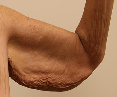 Brachioplasty (Arm Lift) Before & After Patient #767