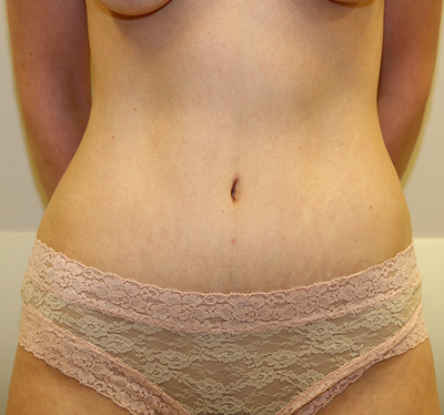 Tummy Tuck Before & After Patient #672