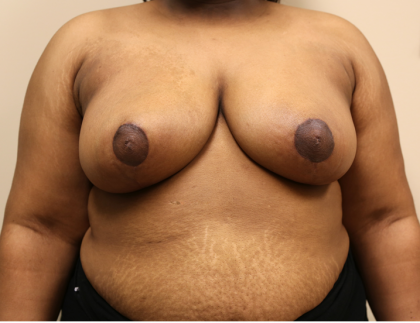 Breast Reduction Before & After Patient #1045