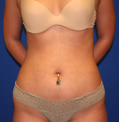 Liposuction Before & After Patient #830