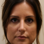 Rhinoplasty Before & After Patient #734