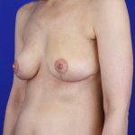 Oncoplastic Breast Reconstruction Before & After Patient #1038