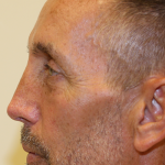 Rhinoplasty Before & After Patient #748