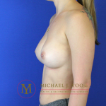 Breast Augmentation Before & After Patient #856