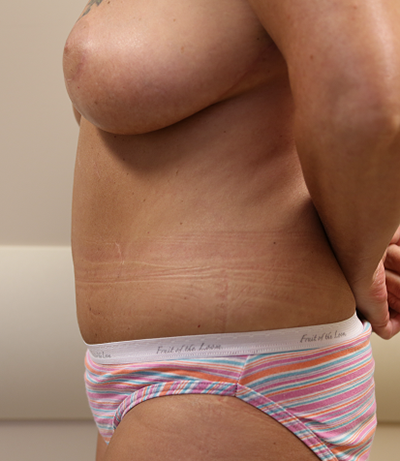 Breast Reduction Before & After Patient #661