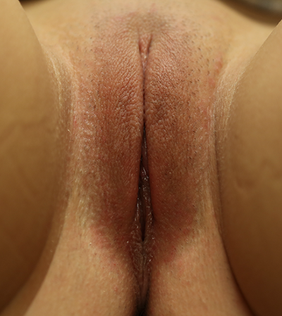 Labiaplasty Before & After Patient #779