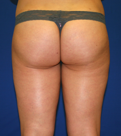 Liposuction Before & After Patient #1052
