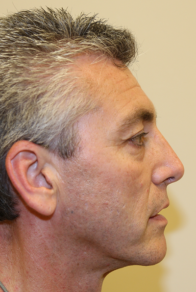 Rhinoplasty Before & After Patient #721