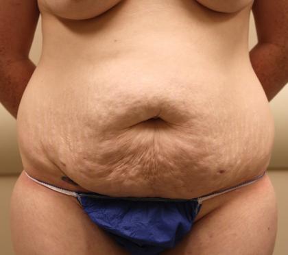 Tummy Tuck Before & After Patient #1031