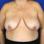 Oncoplastic Breast Reconstruction Before & After Patient #1062