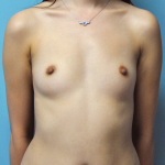 Breast Augmentation Before & After Patient #812