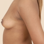 Breast Augmentation Before & After Patient #683