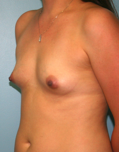 Breast Fat Transfer Before & After Patient #819