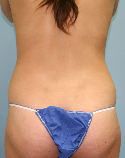 Liposuction Before & After Patient #1057