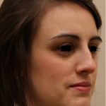 Rhinoplasty Before & After Patient #708