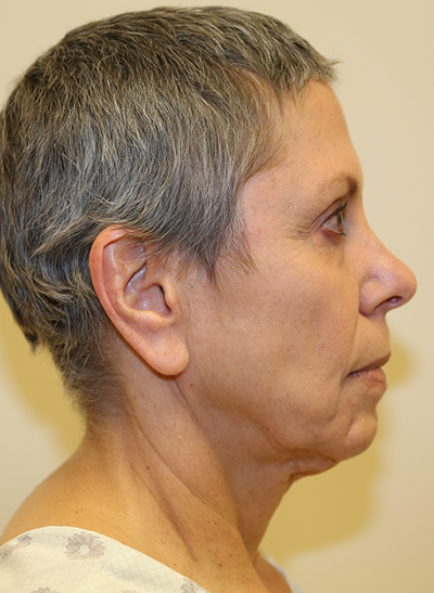 Facelift & Neck Lift Before & After Patient #694