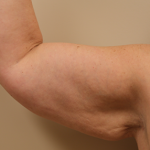 Brachioplasty (Arm Lift) Before & After Patient #701