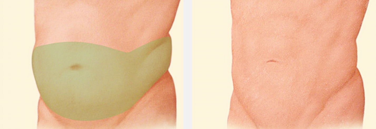 male-tummy-tuck-incision
