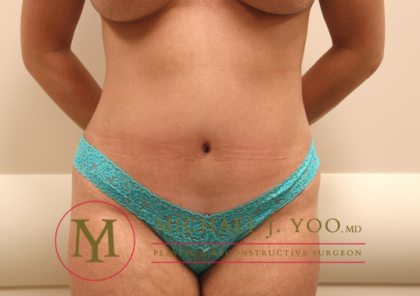 Tummy Tuck Before & After Patient #1252