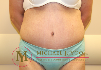Tummy Tuck Before & After Patient #1257