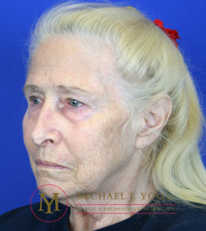 Mohs Surgery Before & After Patient #1291