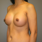 Breast Augmentation Before & After Patient #1268