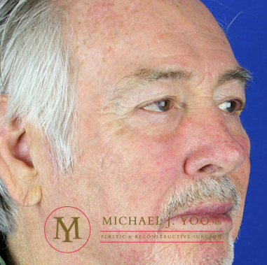 Mohs Surgery Before & After Patient #1286