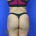Brazilian Butt Lift Before & After Patient #1263