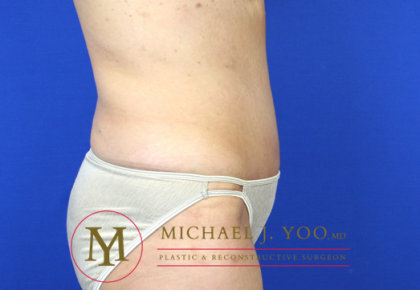 Tummy Tuck Before & After Patient #1319
