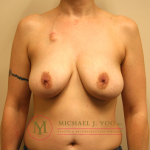 Oncoplastic Breast Reconstruction Before & After Patient #1312