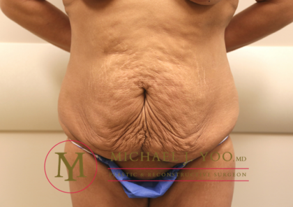 Tummy Tuck Before & After Patient #1260