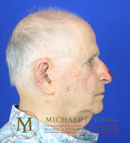 Mohs Surgery Before & After Patient #1279