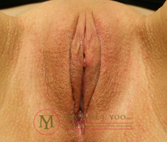 Labiaplasty Before & After Patient #1659