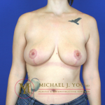 Breast Reduction Before & After Patient #1547