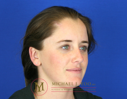 Mohs Surgery Before & After Patient #1573
