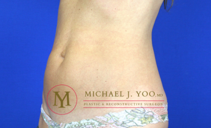 Tummy Tuck Before & After Patient #1554