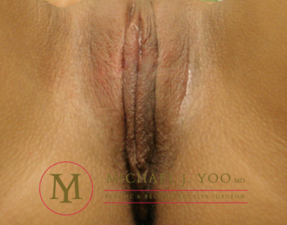 Labiaplasty Before & After Patient #1886