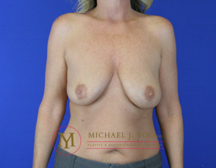 Breast Lift Before & After Patient #1876