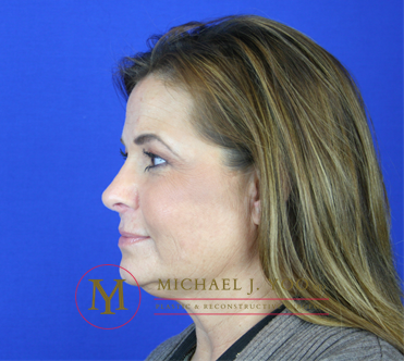Rhinoplasty Before & After Patient #1916