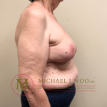 Oncoplastic Breast Reconstruction Before & After Patient #1902