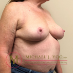 Breast Reduction Before & After Patient #1909