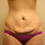 Tummy Tuck Before & After Patient #1923