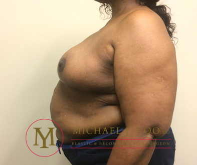 Breast Reduction Before & After Patient #2015