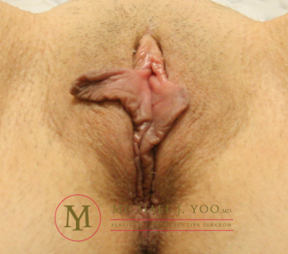 Labiaplasty Before & After Patient #2029