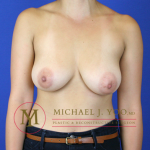 Areola Reduction Before & After Patient #2035