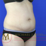 Tummy Tuck Before & After Patient #2022